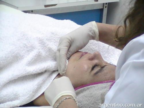 La loción para el lavado al acné